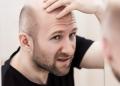 Minoxidil for baldness
